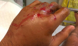 Bourez Hand