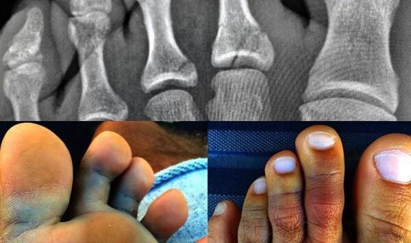Slater toe