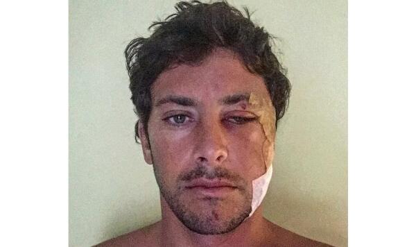 Jeremy Flores post surgery