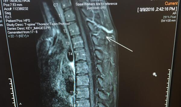 Thoracic MRI of Jake Davis' mass that has accumulated on his spinal cord. This rare condition is known as Spinal Arteriovenous Malformation (AVM).